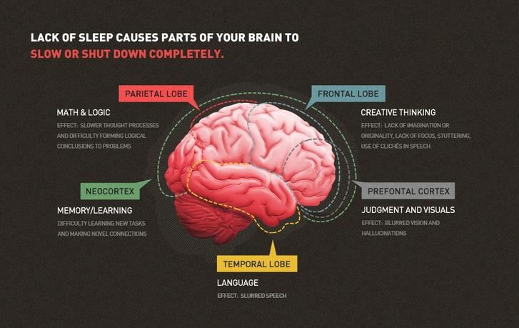 brain-and-sleep